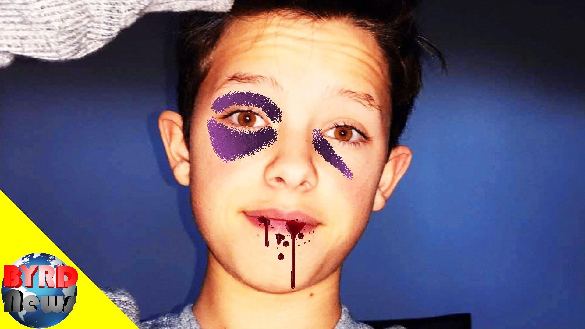 BYRD News: Jacob Sartorius attacked by girl / FouseyTube vs Joey Salads –  YouTube
