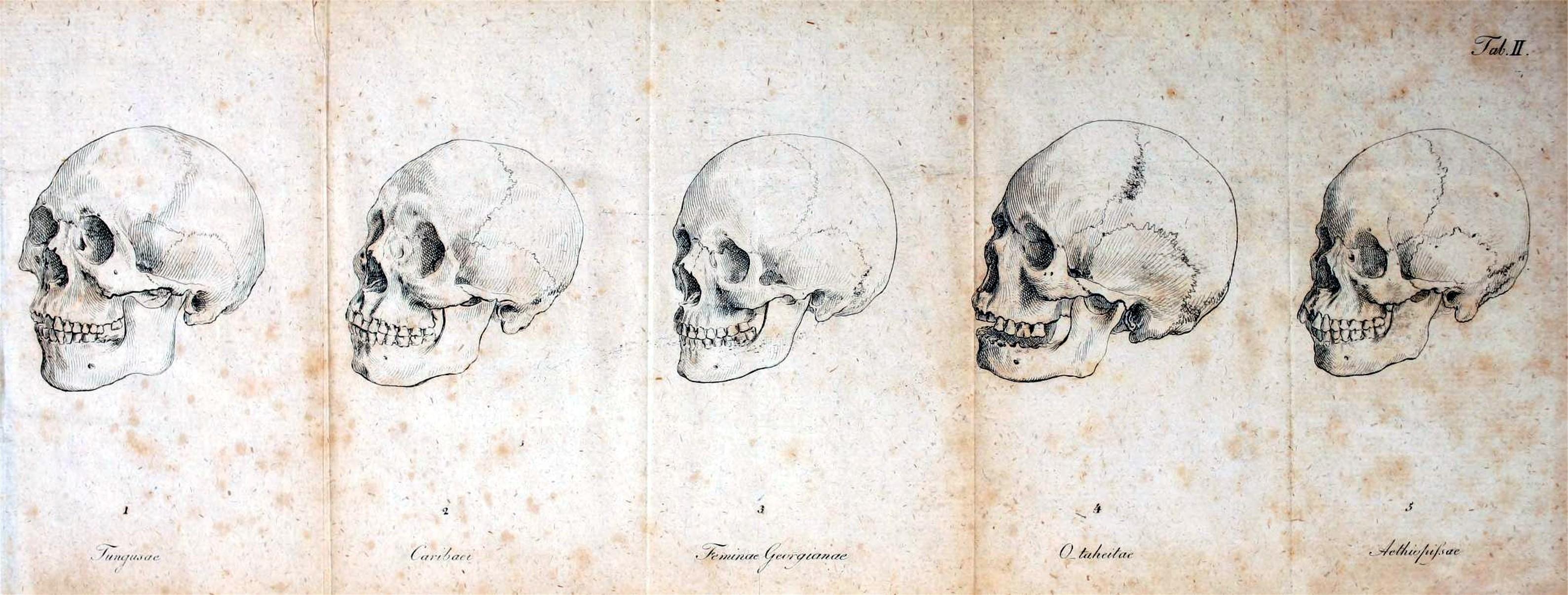 medical-anatomy-skull-2
